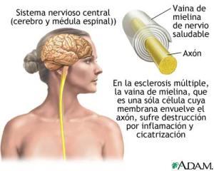 Esclerosis multiple vivienda adaptada